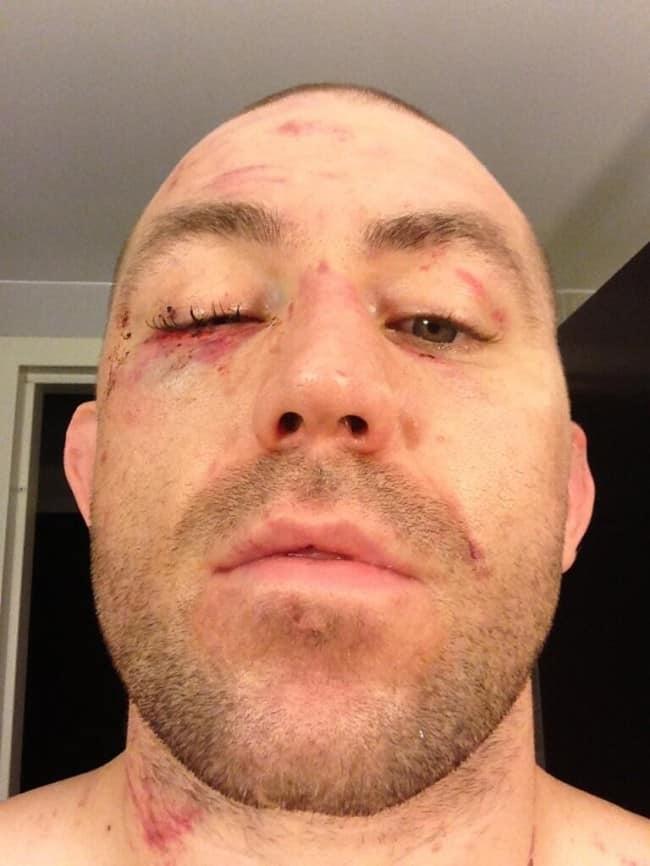 AlanBelcher_eye_UFC159 (1)